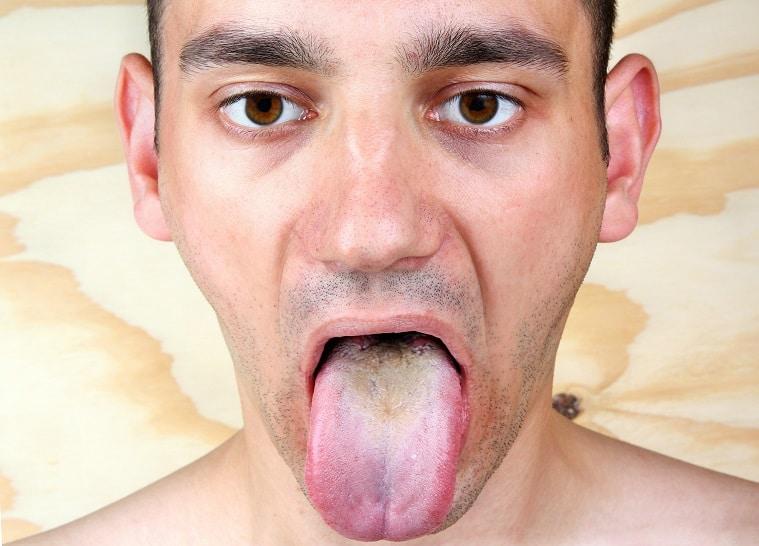 Bruine en wit beslag op de tong