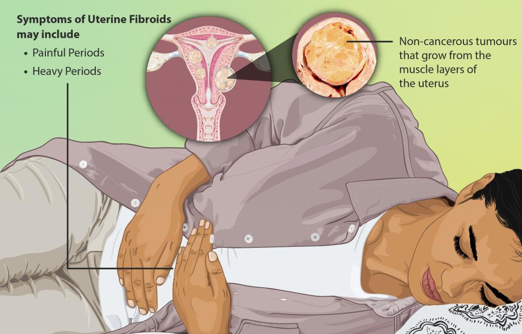 Vleesboom in de baarmoeder