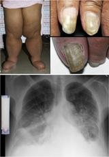 De kenmerkende symptomen van het gele nagel-syndroom