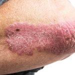 Psoriasis: symptomen, oorzaken en behandeling