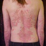 Is psoriasis dodelijk?