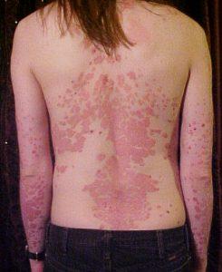 Psoriasis op rug en armen