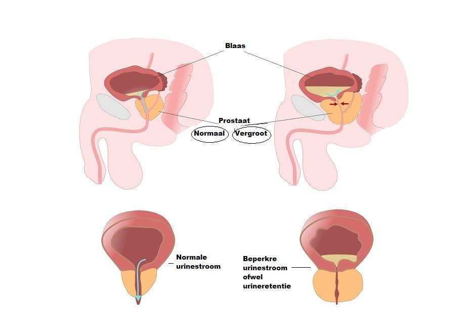 Symptomen bij een vergrote prostaat