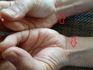 Musculus palmaris longus (lange handpalmspier) / Bron: M.G. Sulman