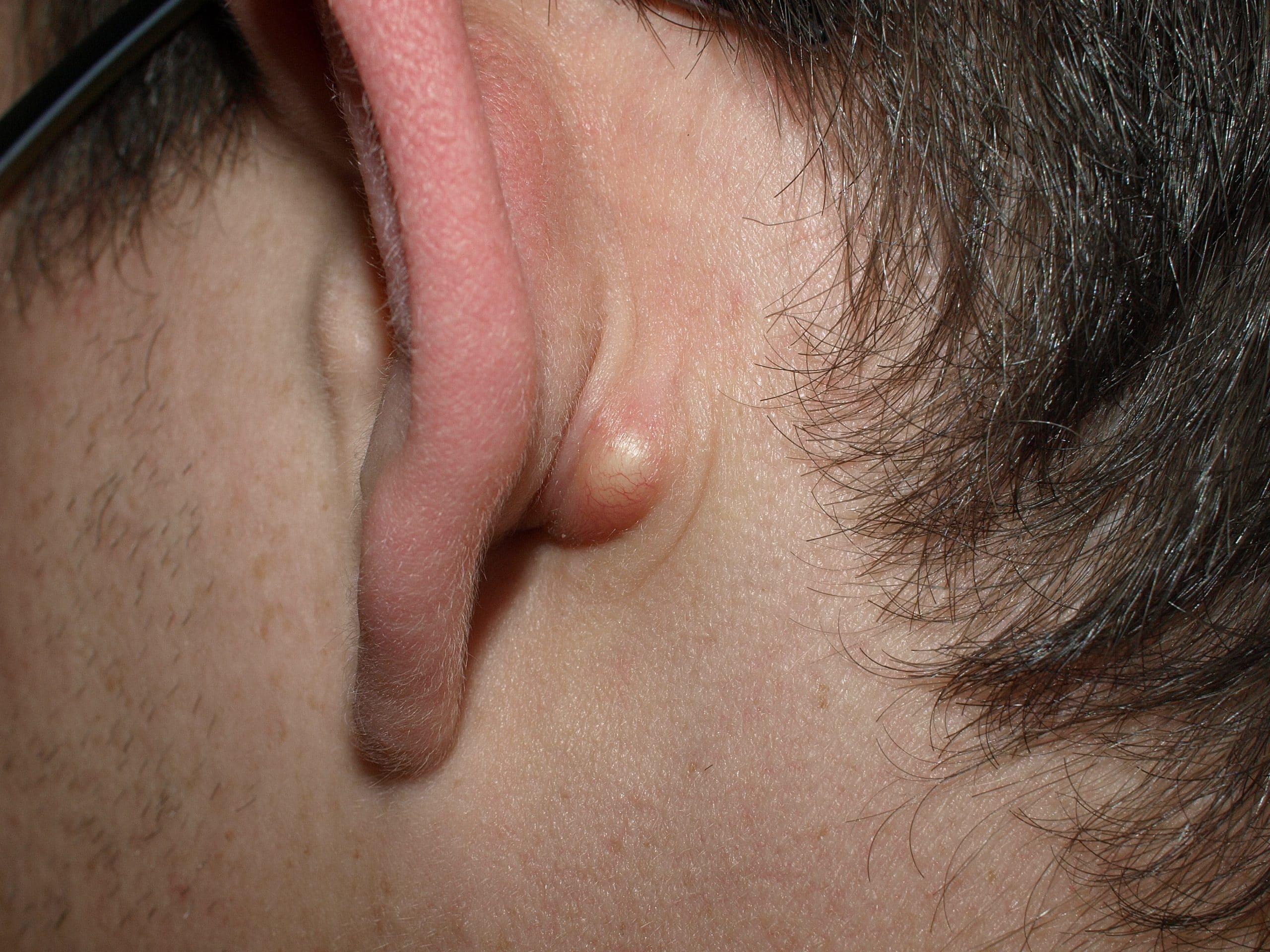 Talgkliercyste achter her oor
