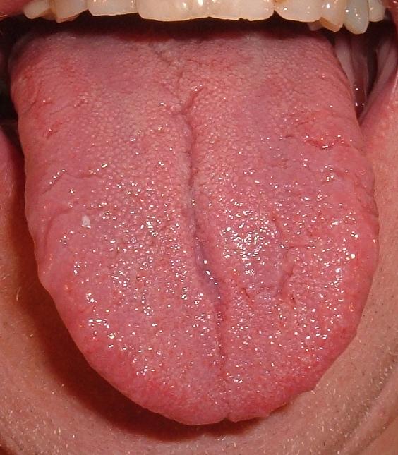 mensentong met groeven (lingua plicata)