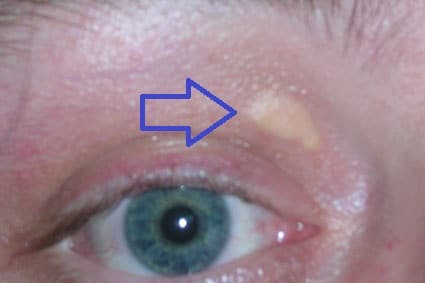 5x4 mm xanthelasma boven rechteroog, ongeveer een jaar na eerste verschijning