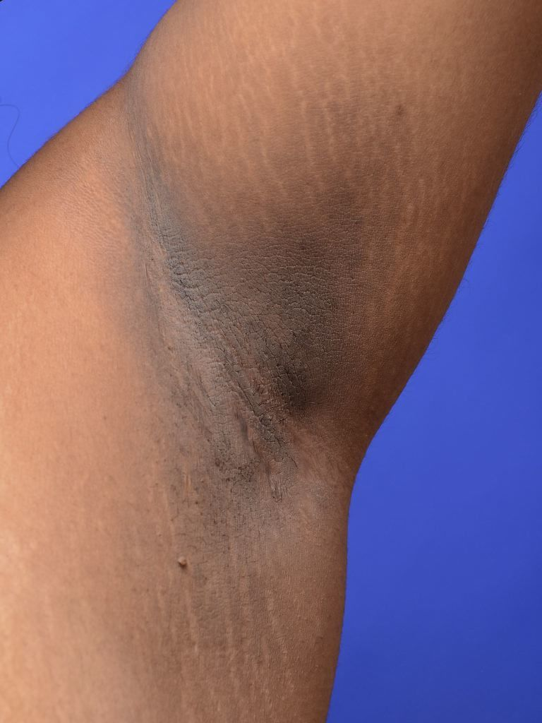 Acanthosis nigricans / Bron: Wikimedia Commons