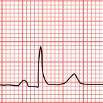 Lage hartslag (bradycardie): oorzaken en behandeling