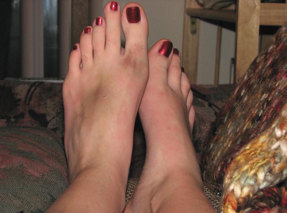 Gekneusde voet