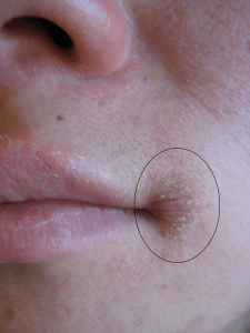 Kapotte mondhoeken Mondhoekragaden Perlèche Cheilitis angularis