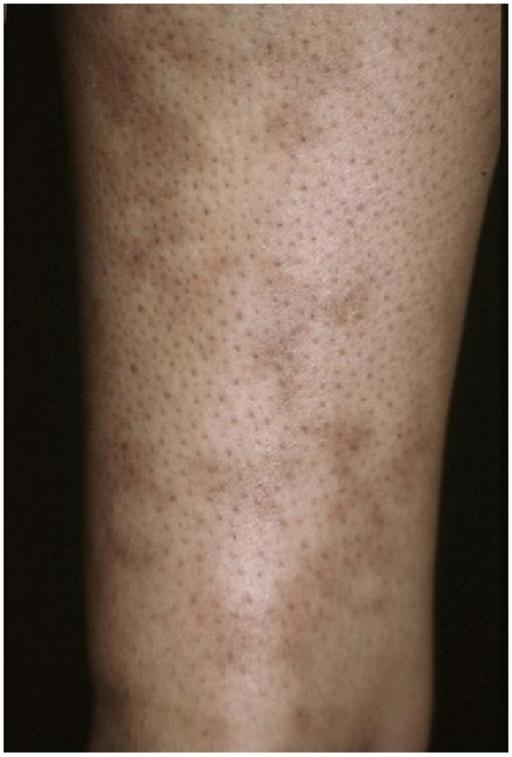 Livedo reticularis op een arm