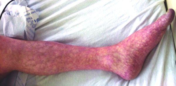 Livedo reticularis op linkerbeen