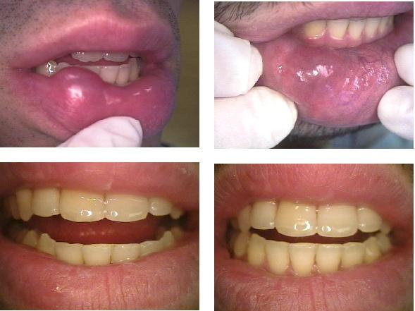 Mucocele (speekselkliercyste) op de lip