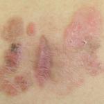 Ziekte van Bowen: symptomen, oorzaak en behandeling
