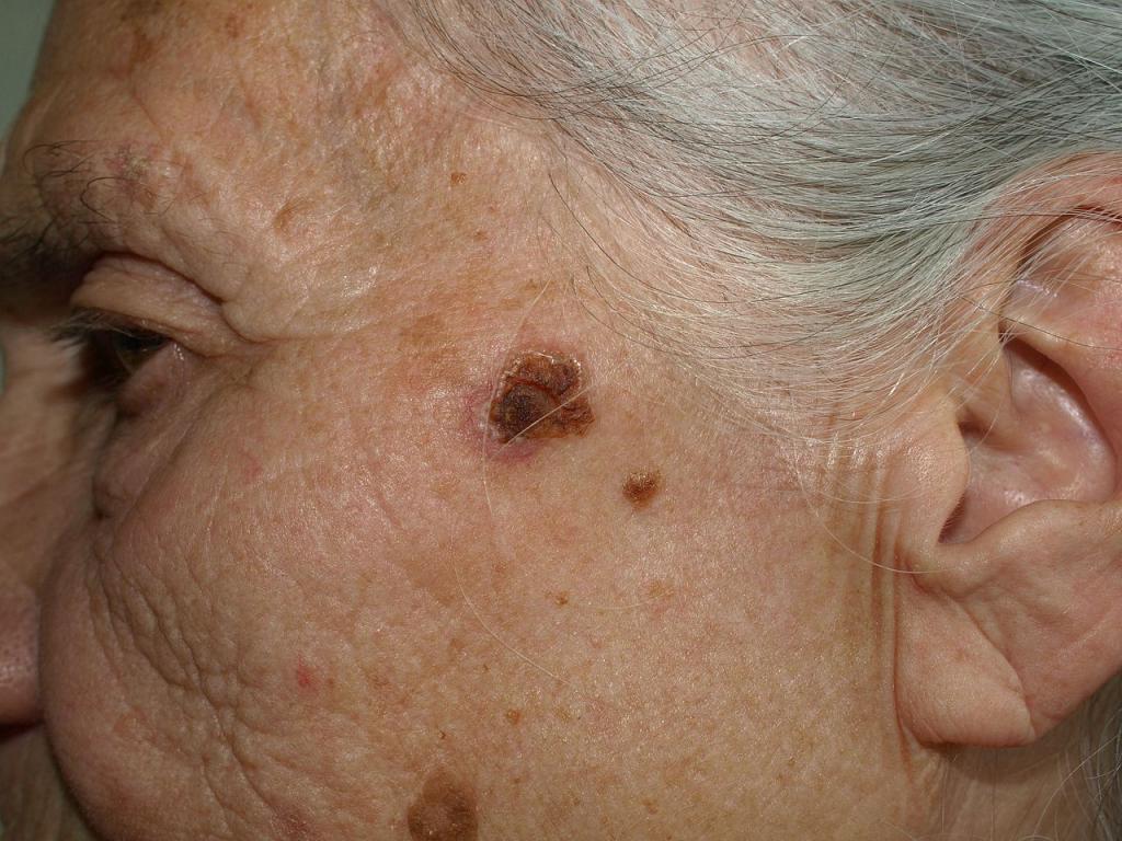 Ziekte van Bowen in het gezicht