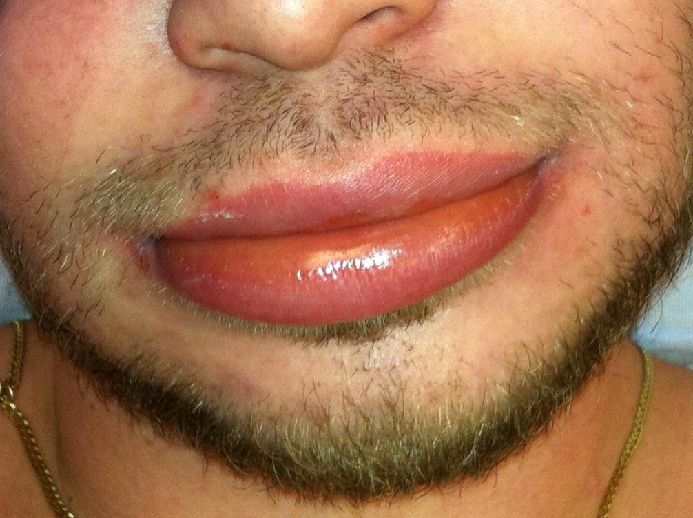 Angio-oedeem