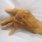 Reumatoïde artritis: symptomen en behandeling