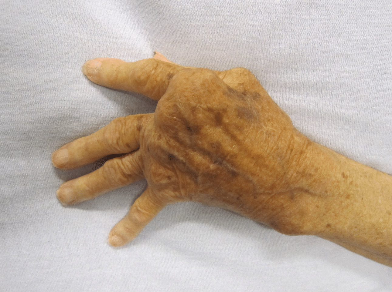 Reumatoïde artritis / Bron: Wikimedia Commons