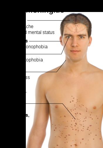 Symptomen van hersenvliesontsteking