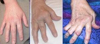 Vergroeiingen t.g.v. reumatoïde artritis