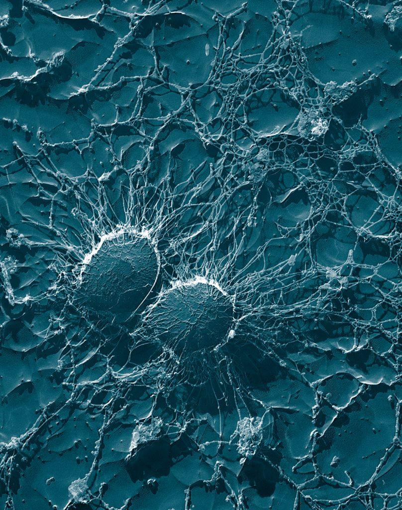 Staphylococcus aureus (50,000x)