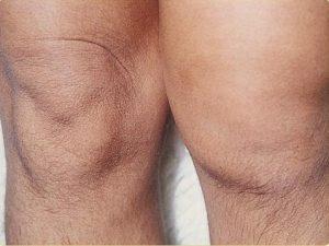Reactieve artritis in de knie